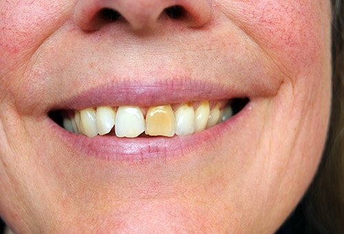DIscoloring of one or more teeth